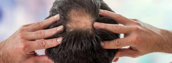 what causes bald spots on your head
